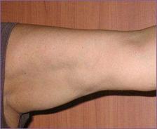 זרוע לפני טיפול