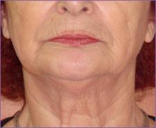 פנים וצוואר אחרי טיפול