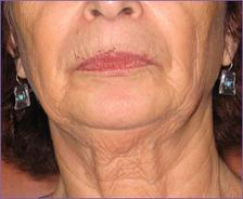 פנים וצוואר לפני טיפול