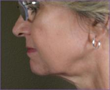 צוואר אחרי טיפול