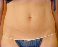 בטן אחרי טיפול