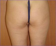 צלוליטיס אחרי טיפול