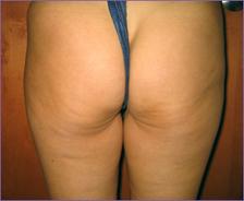 צלוליטיס לפני טיפול