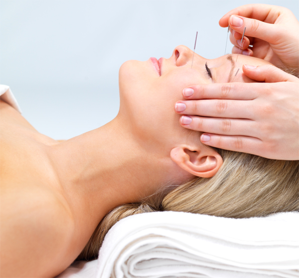 Beautiful young woman lying down receiving acupuncture therapy