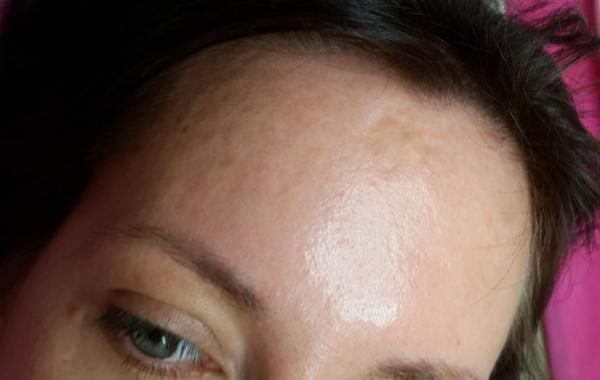 כתם עור לפני טיפול
