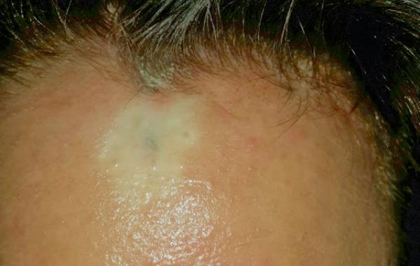 כתם עור מיד לאחר הטיפול